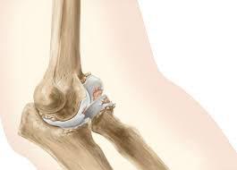 Артроз локтевого сустава фото ортез лучезапястного сустава wrs-306