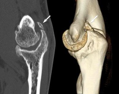 Артрит артроз локтевого сустава строение человека кости и суставы