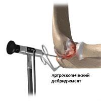 Лечение плечевого сустава по дикулю thumbnail