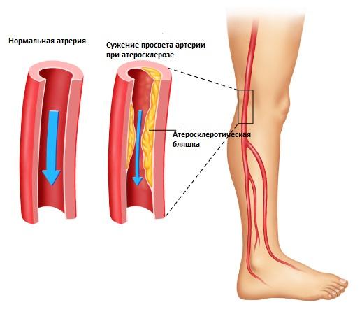 уровень холестерина артериальной крови