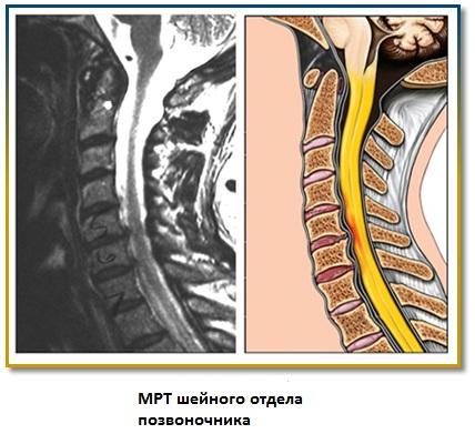 Гиперкифоз грудного отдела позвоночника мкб