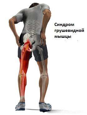 Синдром грушевидной мышцы. Лечение | Центр Дикуля