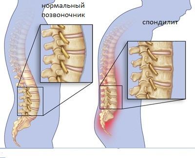 Анкилозирующий спондилит (болезнь Бехтерева) | Центр Дикуля