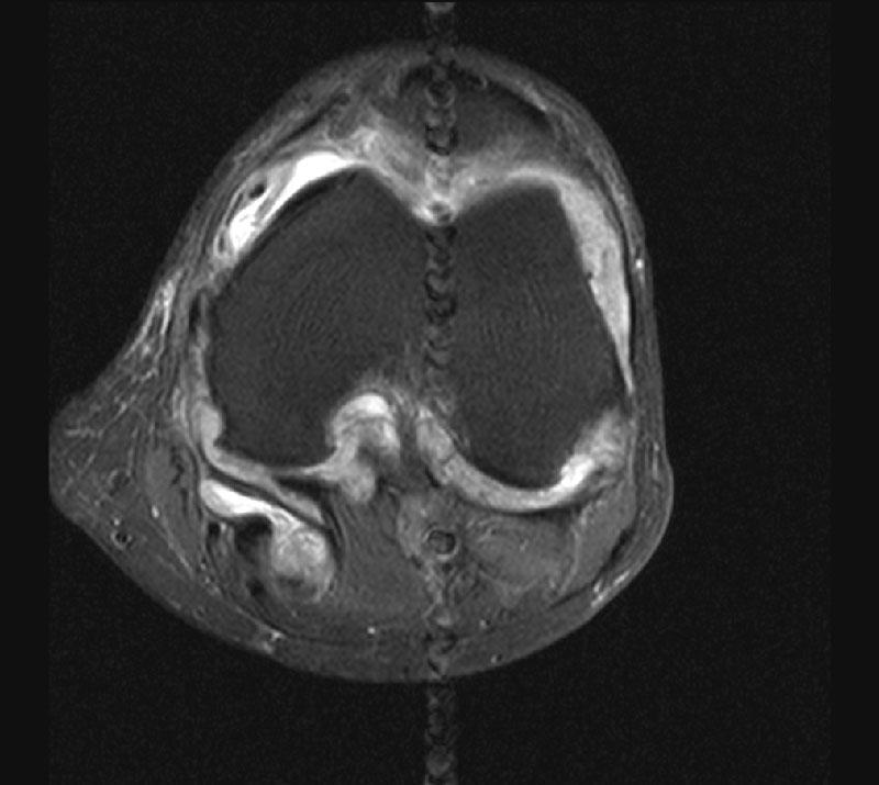 Центр дикуля мрт коленного сустава цены на операции артродез голеностопного сустава