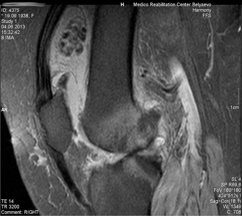 Мрт коленного сустава дикуль хруст и боль в плечевом суставе причины