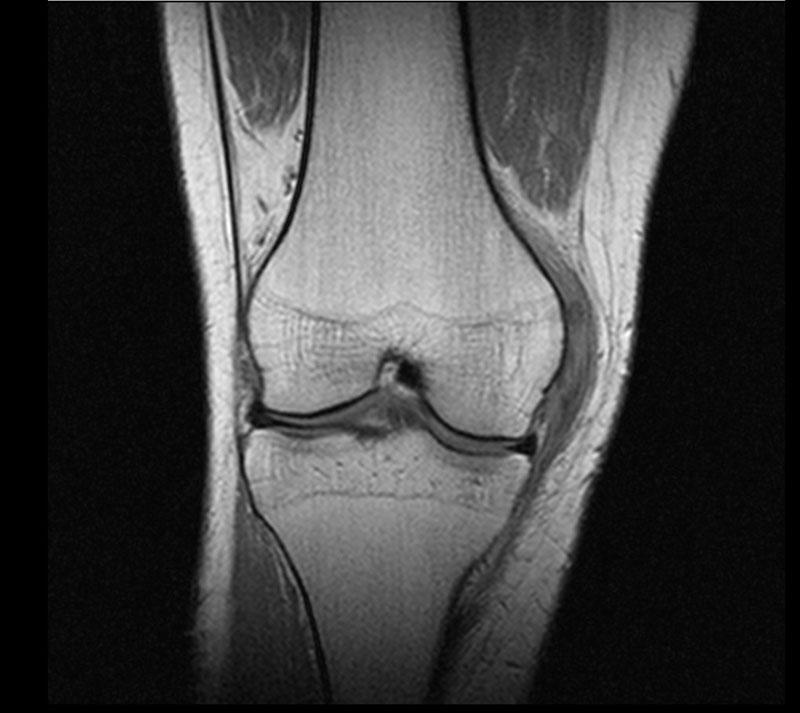 Мрт коленного сустава дикуль болезнь эпикондилит локтевого сустава