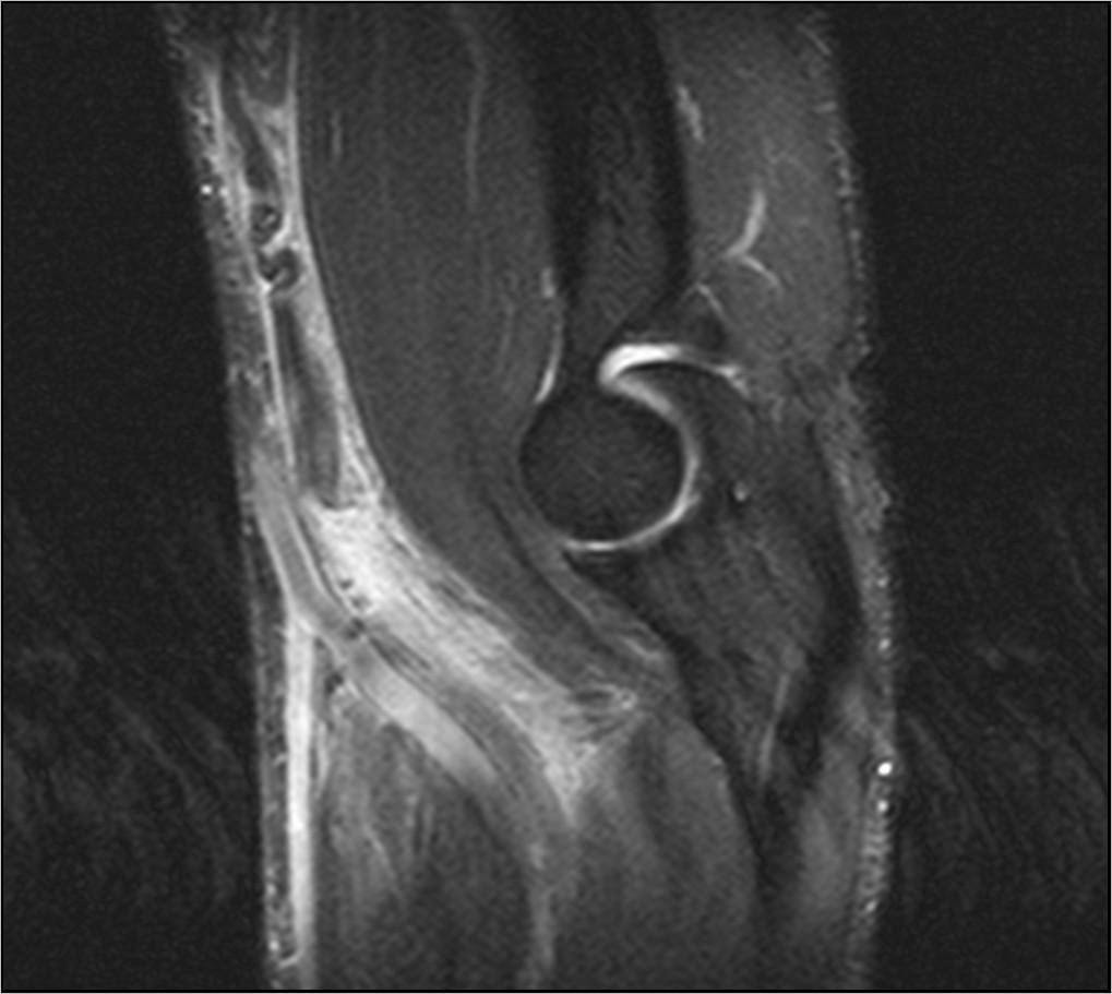 Томография локтевого сустава москва боль в суставах ног чем лечить