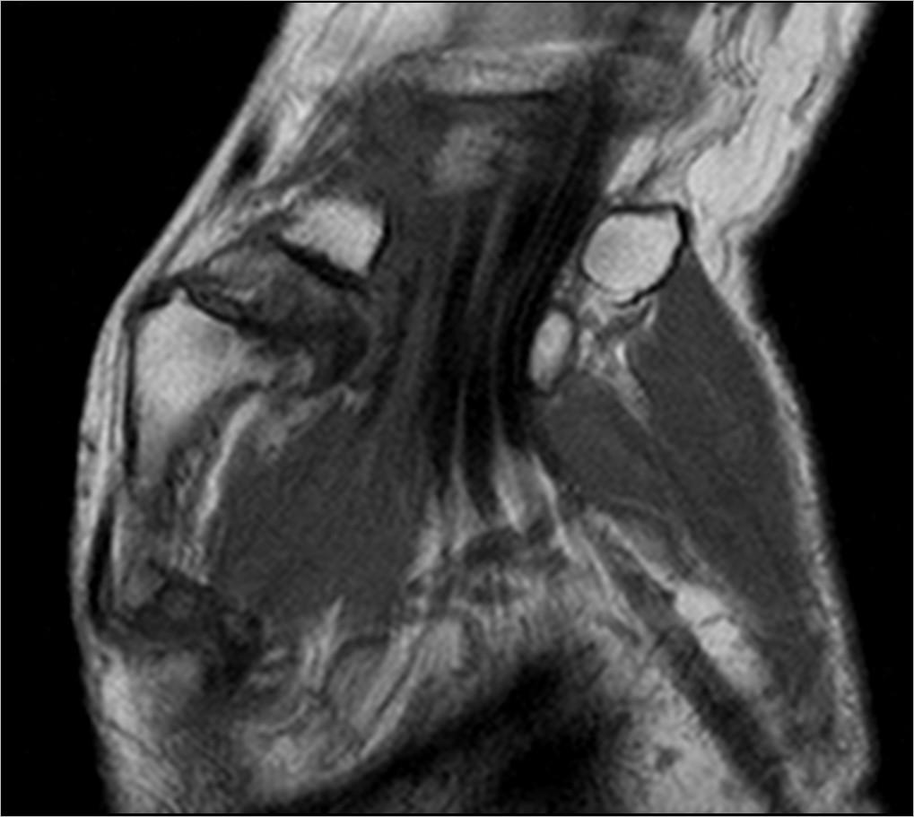 Мрт лучезапястного сустава москва боль во внутренней части коленного сустава