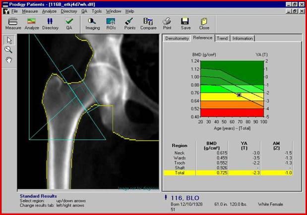 диссимметрия анализ костей на остеопороз