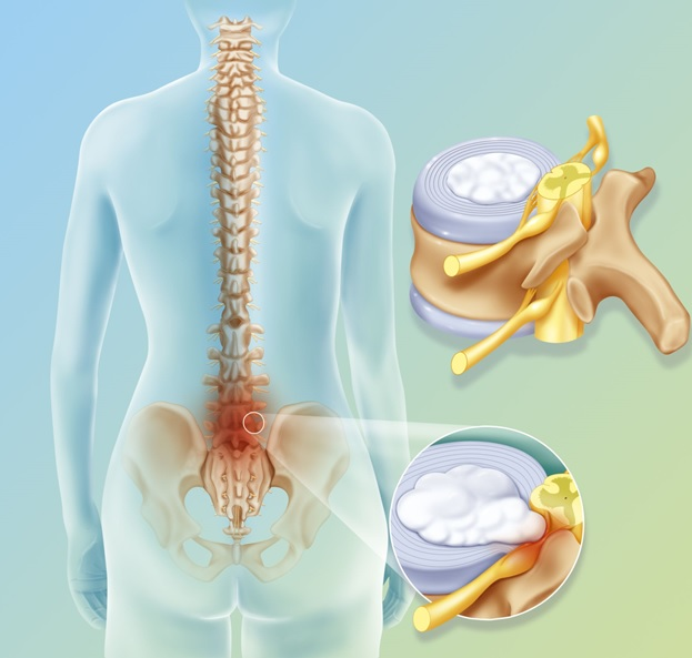 Как лечить дорсопатию