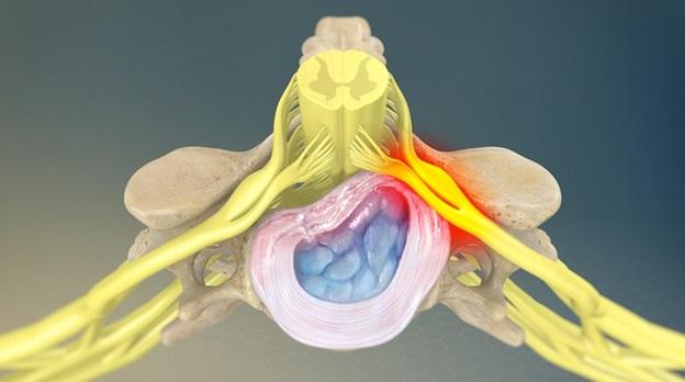 Корешковый синдром поясничного крестцового отдела