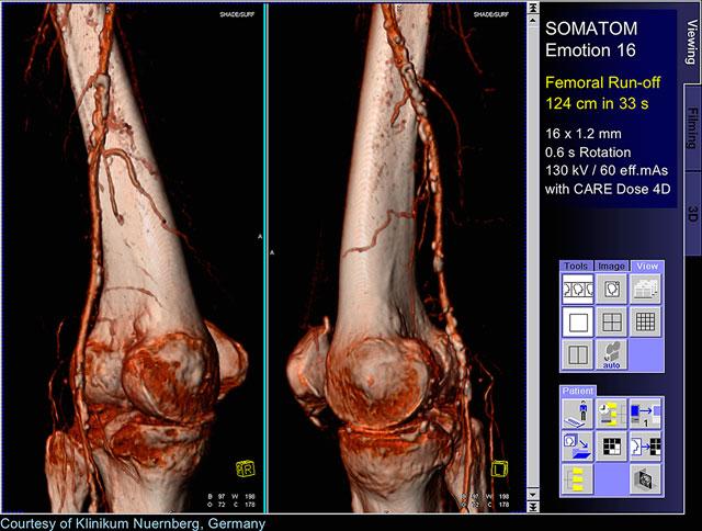 Мскт коленных суставов узи тазобедренного сустава цена ростов