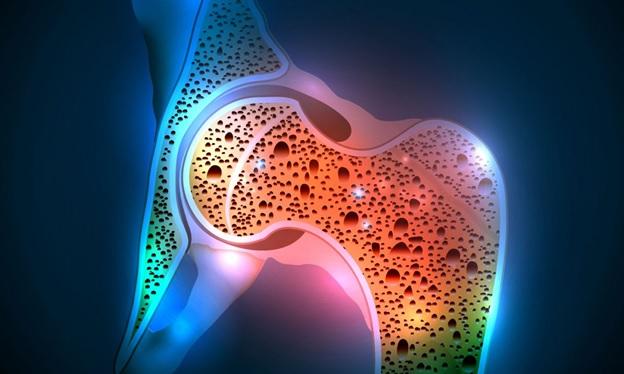 Диагностика остеопороза: денситометрия и другие анализы