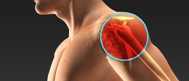 Артрит плечевого сустава лечение блокадой наложение бинтование перевязка растяжение коленного сустава