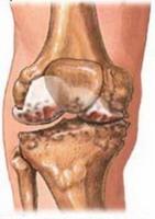 Първоначално лечение на травми (RICE) | Лечение