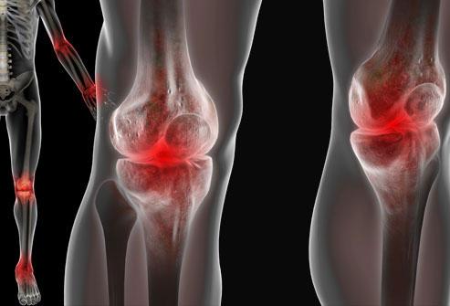 Артропатия суставов что это такое бандаж поддерживающий послеоперационный для плечевого сустава