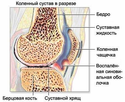Артроз - лечение, симптомы, причины, диагностика   Центр Дикуля