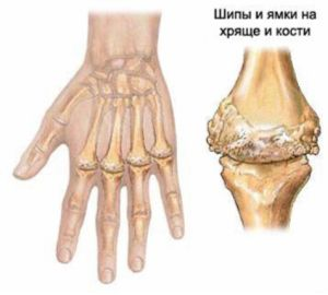 Чем опасен и как лечить артрит тазобедренного сустава