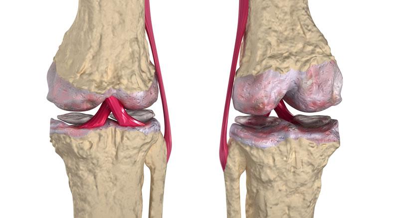 Артрозо-артрит | Центр Дикуля