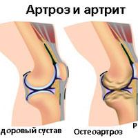 Артрозо артрит 1 степени