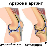 артралгия артрит артроз