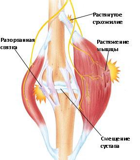 Как лечить руку боли от остеохондроза