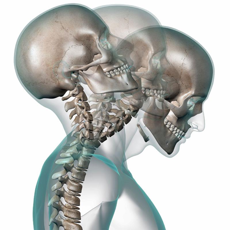 Боль на лице при остеохондрозе