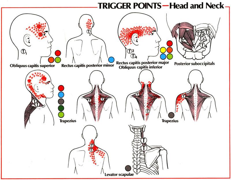боль у основания шеи справа блестящая идея своевременно