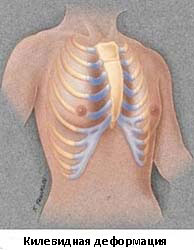 Реферат воронкообразная деформация грудной клетки 9316