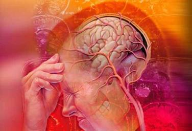 лидокаин при мигрени