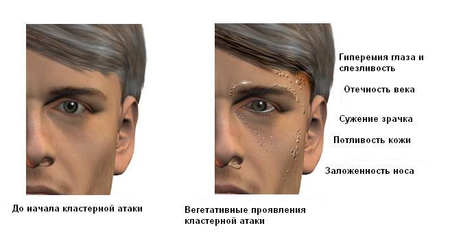 лечение головных болей после эпидуральной анестезии