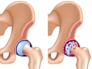 Дикуль лечение тазобедренного сустава thumbnail