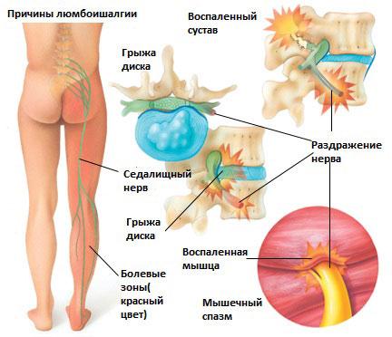 Какие нужны упражнения когда болит спина