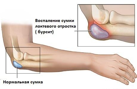 Боль и опухоль локтевого сустава почему болит нога за коленом
