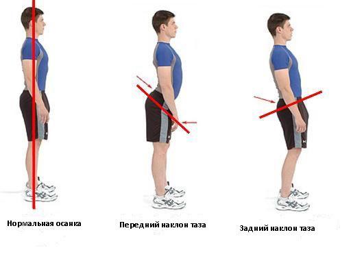 Выпрямление сколиоза упражнения