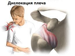 Изображение - Нестабильность плечевого сустава лечение nestabilnost-plechevogo-sustava