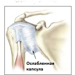 Изображение - Нестабильность плечевого сустава лечение nestabilnost-plechevogo-sustava2