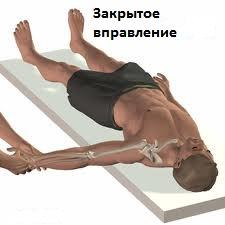 Изображение - Передняя нестабильность плечевого сустава nestabilnost-plechevogo-sustava3