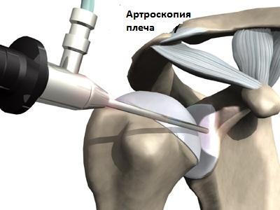 Изображение - Нестабильность плечевого сустава лечение nestabilnost-plechevogo-sustava5