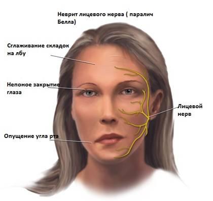 паралич глазного нерва
