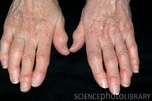 Артрит указательного пальца