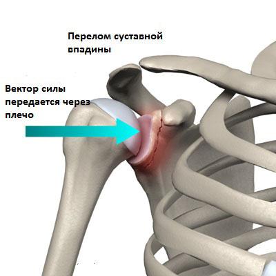 Суставное люберцы клиника позвоночника и суставов