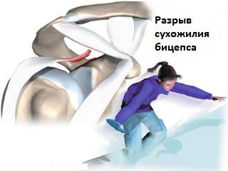 Разрыв мышцы плеча лечение