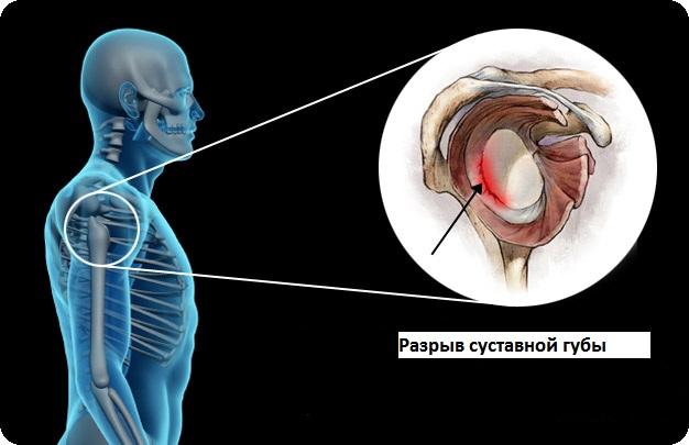 Отрыв плечевого сустава лекарства для лечения суставов рук