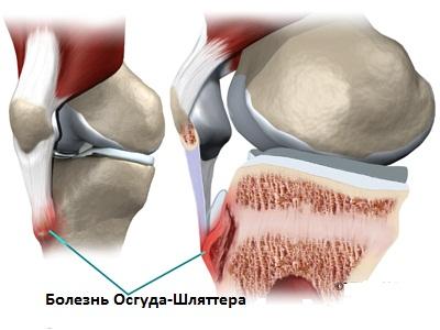 Болезни суставов огуста ш медленное развитие тазобедренного сустава