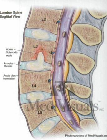 Операция грыжа шейного отдела позвоночника отзывы последствия