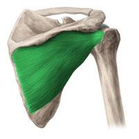 Синдром подостной мышцы