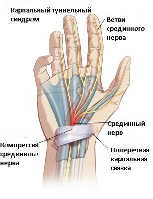 Лучезапястный сустав туннельный синдром контрактура суставов костей