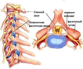 Синдром фасеточных суставов
