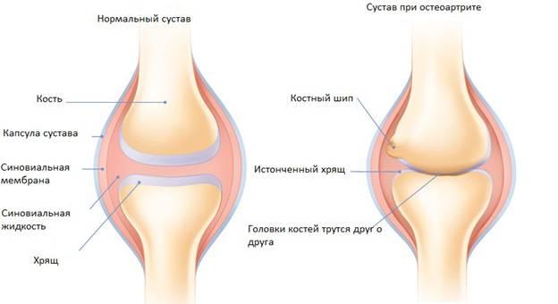 Воспаление суставов и онкология рентгеновский снимок коленного сустава в норме